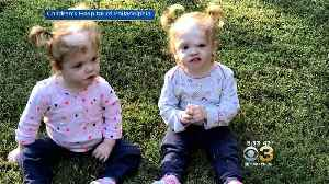 Children's Hospital Of Philadelphia Getting More Recognition For Historic Surgery To Separate Conjoined Twins [Video]