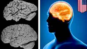 Memory loss in Alzheimer's patients could be reversed [Video]