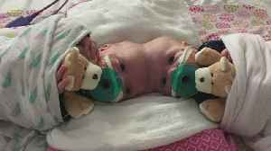Conjoined N.C. Sisters Now Separated, Thriving [Video]