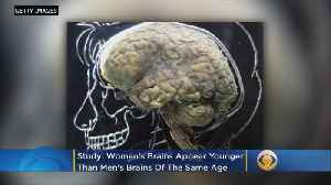 Women's Brains Appear Younger Than Men's, Study Finds [Video]
