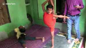 Jaw-dropping video shows India's 'rubber boy' doing extreme yoga [Video]