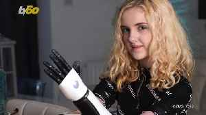 Teen Gets Bionic, 3D Printed 'Hero Arms' After Surviving Deadly Illness [Video]