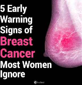 5 Early Warning Signs of Breast Cancer Most Women Ignore [Video]