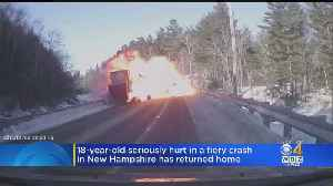 18-Year-Old Seriously Hurt In Fiery Crash In NH Returns Home [Video]