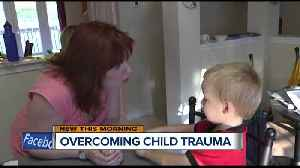 Children exposed to trauma early on have higher chance of delays in development [Video]