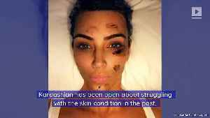Kim Kardashian Reveals Her Psoriasis Outbreak [Video]