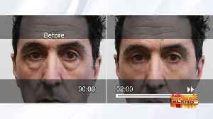 Watch Signs of Aging Disappear in Minutes [Video]
