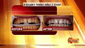 Swap Your Yellow Teeth for a Brighter Smile [Video]