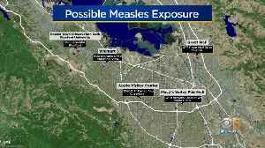Tourist May Have Exposed Thousands To Measles In Santa Clara County [Video]
