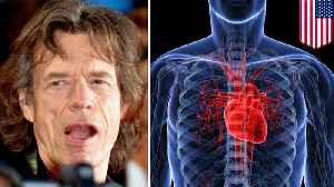 Mick Jagger to get heart valve replacement surgery [Video]