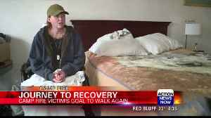 Camp Fire victim learning to walk again [Video]