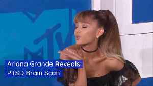 Ariana Grande Health Concerns Lead to Brain Scan [Video]