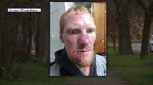 News video: Man Needs About 300 Stitches After Being Attacked by Dog