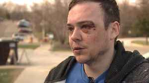 Bicyclist Says Man Beat Him After Nearly Driving into Him in Bike Lane [Video]
