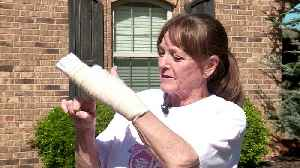 Woman Breaks Finger Falling Over Uneven Sidewalk, Oklahoma City Says it's Not Responsible for Repairs [Video]