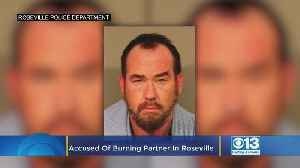 Man Accused Of Nearly Burning Partner To Death In Roseville [Video]