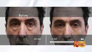 A Quick Fix to Reduce Signs of Aging [Video]