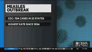 CDC: Measles Cases Has Hit 704 [Video]