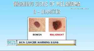 Can you spot skin cancer? Keep an eye out for these warning signs [Video]