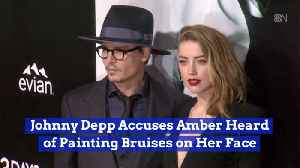 Johnny Depp Believes Amber Heard Faked Her Bruises [Video]