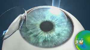 Former FDA Advisor Says LASIK Eye Surgery 'Should Have Never Been Approved' [Video]