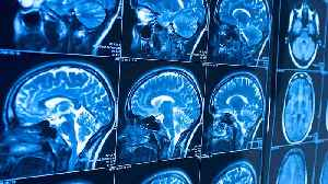 Study Reveals The One Thing You Must Do To Protect Your Brain [Video]