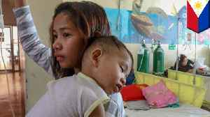 Philippine measles outbreak one of the worst in the world [Video]