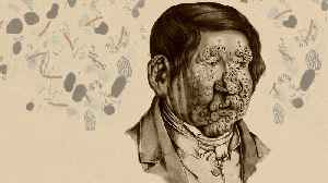 How Does Leprosy Damage The Human Body? [Video]