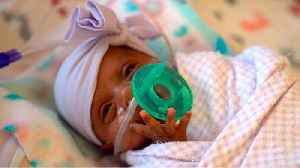 She was the world's smallest baby. Now she's a healthy infant [Video]