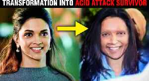 Chhapaak | Deepika Padukone UNBELIEVABLE Transformation InTo Acid Attack Survivor [Video]