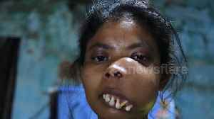 Indian woman with facial tumour branded 'monkey girl' launches crowdfunding campaign for surgery [Video]