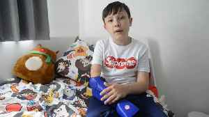Schoolboy who play Xbox with chin given bionic arm [Video]