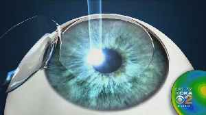 The link between Lasik surgery and Suicide. KDKA's Ginger Allen reports. [Video]