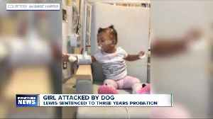 Buffalo woman who pled guilty over dog attack on toddler sentenced to three years probation [Video]