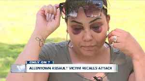 Only on 7: Allentown assault victim recalls attack [Video]