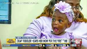 Deaf toddler gets cochlear implants, hears mom say 'I love you' [Video]