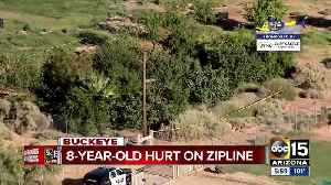 8-year-old boy hurt on zipline in Buckeye [Video]
