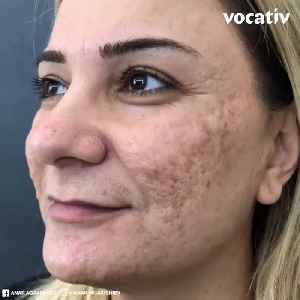 Makeup Artist Helps Women With Burns and Scarring Feel Beautiful Again [Video]