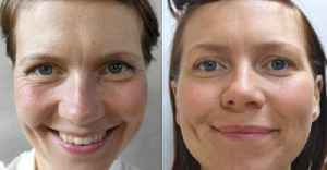 This Woman Got Amazing Results After Drinking 3.5 Litres Of Water A Day For A Month [Video]