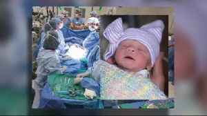 Ask Dr. Nandi: First baby in the U.S. born from transplanted womb of dead donor [Video]