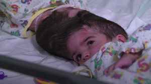 Rare conjoined twins separated at Great Ormond Street