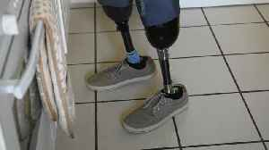 Diabetic who struggled to walk has legs amputated [Video]