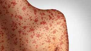 U.S. Facing Worst Measles Outbreak Since 1992 [Video]