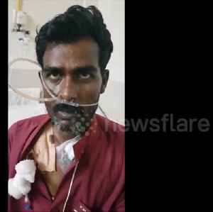 Indian doctors remove 3.5cm chicken bone from man's throat in four-hour operation [Video]