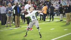 Double Amputee Football Star - The Calder Hodge Story [Video]