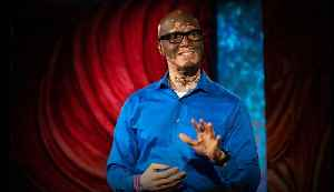 How I help people understand vitiligo   Lee Thomas [Video]