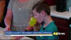 FDA Votes to Approve Peanut Allergy Treatment [Video]