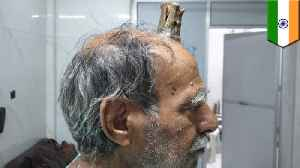 Four-inch 'devil horn' removed from Indian man's head [Video]