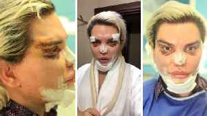 Rodrigo Alves undergoes 70th surgery to become a 'pop icon' with 'sexy cat eyes' and a smaller chin ready for Eurovision [Video]