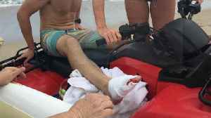 Firefighter off work after possible shark attack, strangers stepped in [Video]
